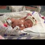 Born on April 27, 2015.  4 lbs, 4 ounces, 18 inches.